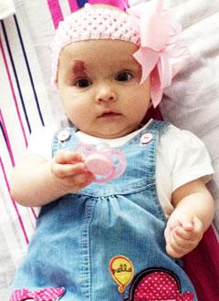 Ксюша Бузина, 8 месяцев, деформация черепа, требуется лечение специальными шлемами. 180000 руб.