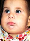 Милана Суздалева, аномалия развития кистей, требуется этапное хирургическое лечение, 971000 руб.