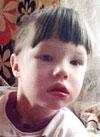 Катя Богушевич, синдром Арнольда – Киари (аномально низкое расположение мозжечка), задержка психоречевого развития, требуется курсовое лечение, 199200 руб.