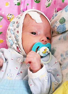 Давид Геджадзе, 8 месяцев, окклюзионная гидроцефалия, требуется программируемый клапан для системы шунтирования. 136704 руб.