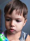 Федя Кириченко, врожденный полный лицевой паралич справа, требуется многоэтапное хирургическое лечение, 710000 руб.