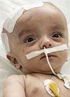Миша Тагиев, 6 месяцев, гидроцефалия (водянка головного мозга), спасут операции. 444223 руб.