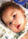 Азалия Галимова, 4 года, спинальная амиотрофия Верднига – Гоффмана, требуется переносной аппарат искусственной вентиляции легких (ИВЛ). 2376010 руб.
