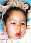 Софья Гусева, 4 года, спинальная амиотрофия Верднига – Гоффмана, требуется переносной аппарат искусственной вентиляции легких (ИВЛ). 2420332 руб.