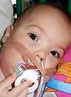Мадина Шагитова, 1 год, бронхолегочная дисплазия, требуется переносной аппарат искусственной вентиляции легких (ИВЛ) и расходные материалы к нему на год. 2006730 руб.