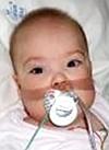 Малика Шагитова, 1 год, бронхолегочная дисплазия, требуется переносной аппарат искусственной вентиляции легких (ИВЛ) и расходные материалы к нему на год. 1995121 руб.
