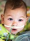 Миша Соколов, 10 месяцев, врожденный центральный гиповентиляционный синдром, требуется переносной аппарат искусственной вентиляции легких (ИВЛ) и расходные материалы к нему на год. 2510399 руб.