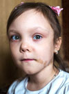 Софа Комарова, 6 лет, синдром МакКьюна – Олбрайта – Брайцева – остеопороз (хрупкость костей) на фоне фиброзной дисплазии (замещения костной ткани соединительной), требуется курсовое лечение. 579064 руб.