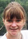 Даша Ухова, 15 лет, буллезный эпидермолиз, требуется послеоперационное лечение. 91140 руб.