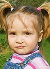Диана Ниязова, расщелина альвеолярного отростка, недоразвитие челюстей, требуется ортодонтическое лечение, 160300 руб.