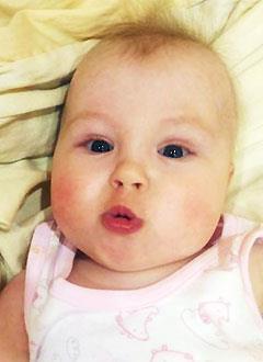 Настя Федорова, 1 год, несовершенный остеогенез, требуется курсовое лечение. 527310 руб.