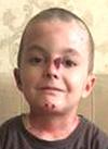Ибрагим Магомедов, 9 лет, врожденный буллезный эпидермолиз, требуется лечение. 680597 руб.