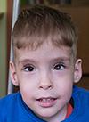 Семен К., 4 года, Spina bifida – врожденный порок развития спинного мозга, требуется курсовое лечение. 658317 руб.