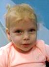 Вера Черная, 3 года, Spina bifida – врожденный порок развития спинного мозга, требуется курсовое лечение. 658317 руб.