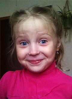 Света Федорова, 7 лет, ювенильный ревматоидный артрит, требуется лекарство. 402427 руб.