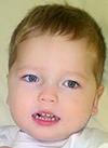 Артем Дербенев, 4 года, симптоматическая эпилепсия, требуется лечение. 199430 руб.