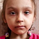 Мира Прокопьева, редкое генетическое заболевание – анемия Фанкони, спасет трансплантация костного мозга, требуются поиск и активация донора и лекарства, 2684899 руб.