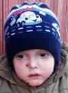 Исмаил Елизаров, 5 лет, дистрофический буллезный эпидермолиз, требуется система светотерапии, перевязочные материалы и средства для ухода за кожей. 1199835 руб.