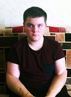 Ярослав Шишов, 17 лет, ампутация обеих рук в результате электротравмы, требуется дополнительное протезирование в Центре протезирования и реабилитации Новавис (Вальденбух, Германия). 1744192 руб.