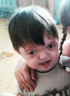 Артем Лыско, 9 лет, синдром Апера, черепно-лицевой дизостоз (недоразвитие костей), сужение зубных рядов, недоразвитие верхней челюсти, требуется ортодонтическое лечение. 150000 руб.