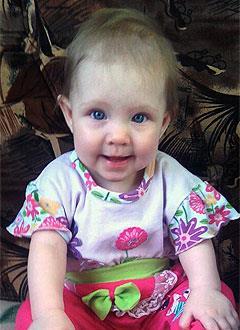 Алена Гусева, полтора года, врожденный порок сердца, дефект межпредсердной перегородки, спасет эндоваскулярная операция. 396014 руб.