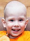 Ян Матвеев, врожденные пороки развития центральной нервной системы и позвоночника, спинномозговая грыжа, вывих правого бедра, S-образный сколиоз, требуется кресло-коляска, 67823 руб.