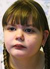 Соня Максимова, 12 лет, детский церебральный паралич, требуется операция. 265792 руб.