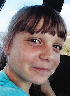 Аня Степина, 12 лет, врожденный порок сердца, спасет эндоваскулярная операция. 339063 руб.