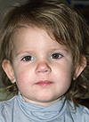 Варя Зацепина, 2 года, двусторонняя тугоухость 3-й степени, требуются слуховые аппараты. 219062 руб.