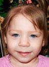 Кира Усольцева, 2 года, врожденный порок сердца, спасет эндоваскулярная операция, требуется окклюдер. 302293 руб.