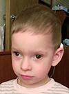 Степа Новиков, 2 года, миопический астигматизм, расходящееся косоглазие, требуется операция. 92225 руб.