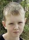 Артем Соларев, 12 лет, прогрессирующий грудной сколиоз 4-й степени, реберный горб, требуется операция. 822940 руб.