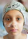 Ангелина Дениско, 13 лет, острый миелобластный лейкоз, требуются лекарства. 1958317 руб.