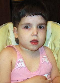 Поля Бещанова, 7 лет, эпилепсия, спастический тетрапарез, требуется лечение. 199430 руб.