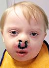 Тёма Обухов, 2 года, врожденная двусторонняя расщелина верхней губы и нёба, требуется операция. 105701 руб.