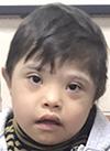 Абубакр Олимов, 5 лет, врожденная двусторонняя косолапость, артрогрипоз, требуется операция. 205911 руб.