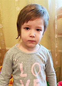 Нонна Шитова, 4 года, послеоперационный костный дефект правой теменной области, спасет операция, требуется компьютерное моделирование и изготовление импланта. 180000 руб.