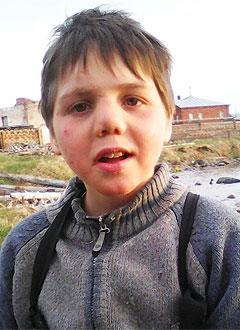 Вася Белышев, 10 лет, врожденный гиперинсулинизм, требуется лекарство. 203633 руб.