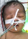 Озодбек Халбаев, 10 дней, сложный врожденный порок сердца, спасет операция. 449830 руб.