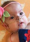 Доминика Литвинова, 7 месяцев, бронхолегочная дисплазия и трахеобронхомаляция (патология развития трахеи и бронхов), требуется переносной кислородный концентратор. 282100 руб.
