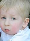 Богдан Проненко, 3 года, прогрессирующий кифосколиоз 4-й степени с поясничным противоискривлением, спасет операция. 822940 руб.