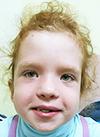 Настя Борисова, 7 лет, опухоль головного мозга – пилоидная астроцитома, спасет протонное облучение. 1953000 руб.