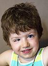 Поля Шестакова, 4 года, глиома – опухоль мозга, спасет протонная терапия. 1953000 руб.