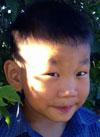 Рома Ким, 6 лет, врожденная правосторонняя косолапость, рецидив, требуется лечение. 151900 руб.