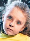 Даша Гордийко, 5 лет, аномалия развития шейного отдела позвоночника, костная кривошея, спасет операция. 1863328 руб.