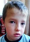 Коля Никифоров, 7 лет, врожденная расщелина твердого и мягкого нёба, требуется операция. 105701 руб.