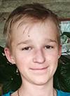Максим Калиничев, 13 лет, врожденный буллезный эпидермолиз, требуется обследование и операция. 246460 руб.