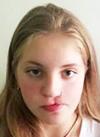 Даша Прицкер, 17 лет, недоразвитие челюстей, послеоперационная рубцовая деформация верхней губы и носа, требуется операция. 602000 руб.
