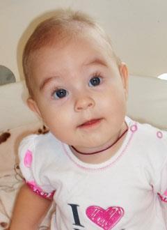 Даша Курилех, 7 месяцев, врожденный порок сердца, спасет эндоваскулярная операция. 315752 руб.