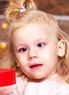 Маша Залесова, 2 года, злокачественная опухоль – диффузная астроцитома головного мозга, спасет протонная терапия. 2556531 руб.